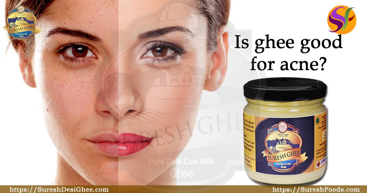 Is ghee good for acne : SureshDesiGhee.com