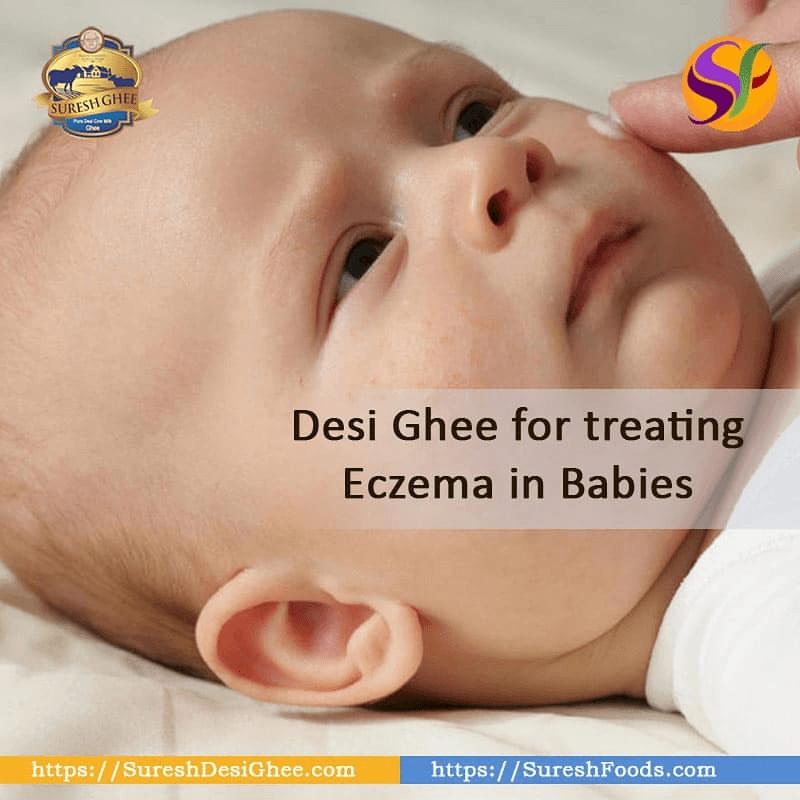 desi ghee for treating eczema : SureshDesiGhee.com